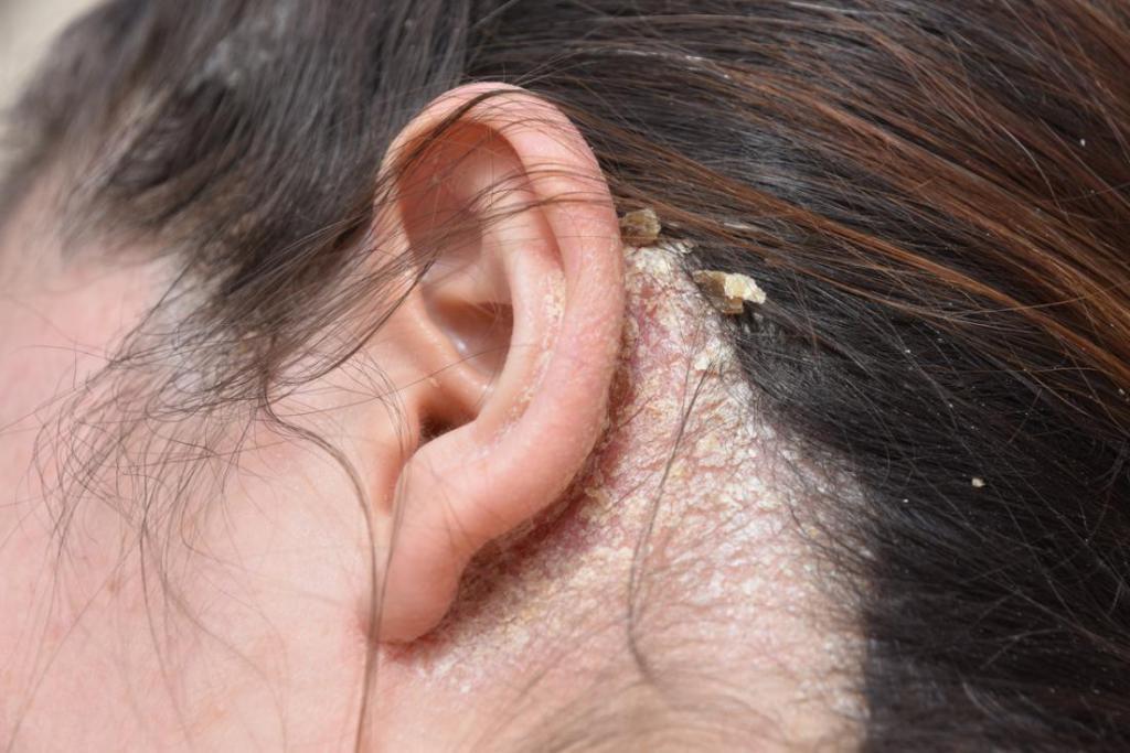 Перхоть в ушах причины лечение 14