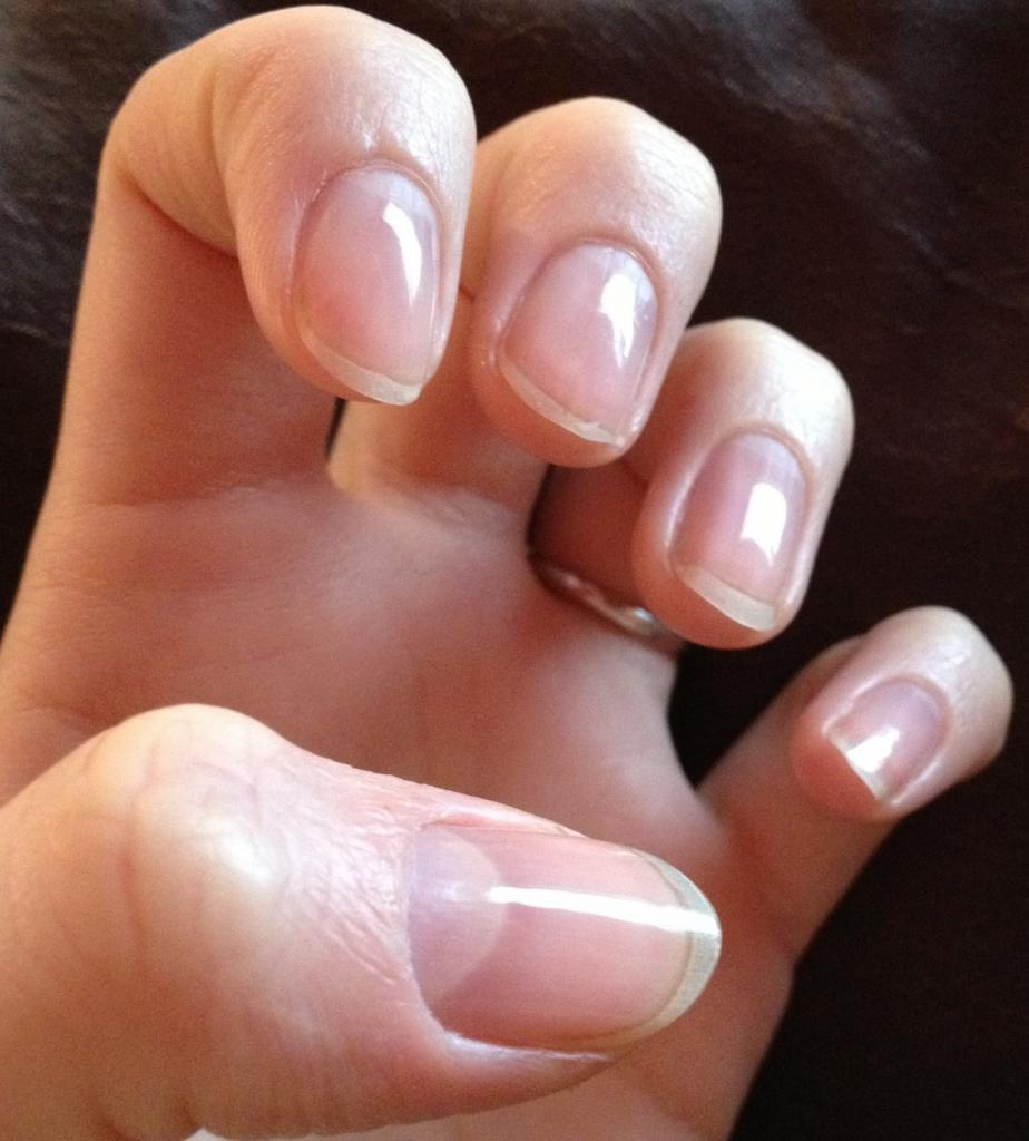 Nail extension with biogel