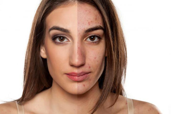 Фригидность у женщин причины симптомы лечение