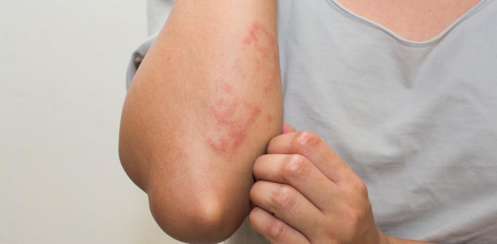 Аллергия на имбирь: симптомы и лечение. Состав имбиря