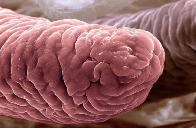 кишечные ворсинки в пищеварительном канале человека