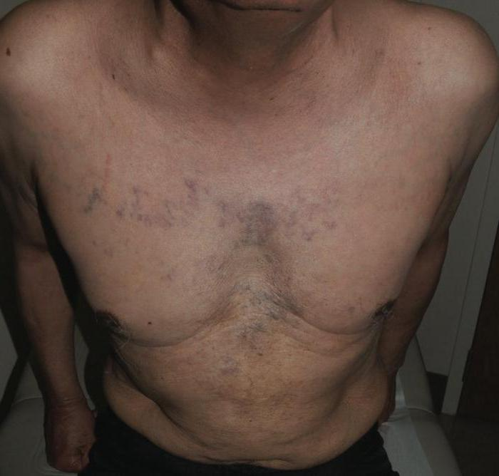 синдром сдавления нижней полой вены