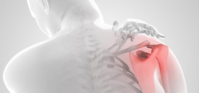 Операция Банкарта лечение повреждения плечевого сустава