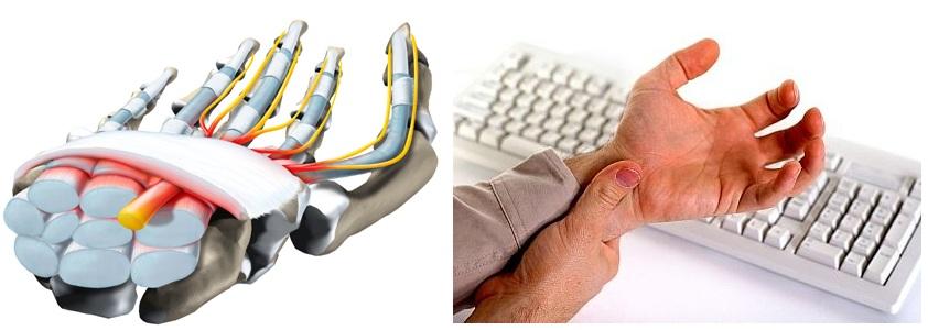 Онемение левой руки: причины и лечение