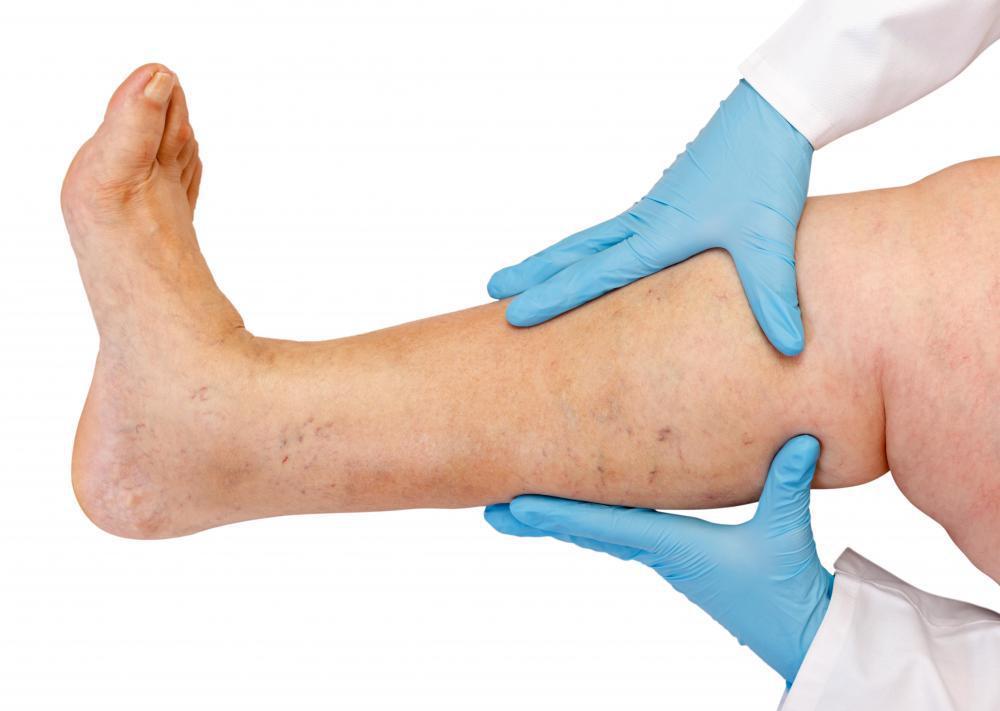 картинки лечи ногу обаяние
