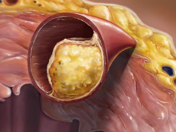 от чего холестериновые бляшки