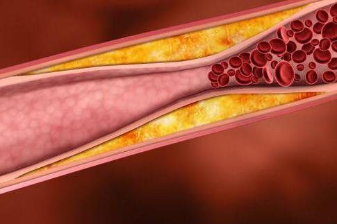 Холестериновые бляшки в сосудах головного