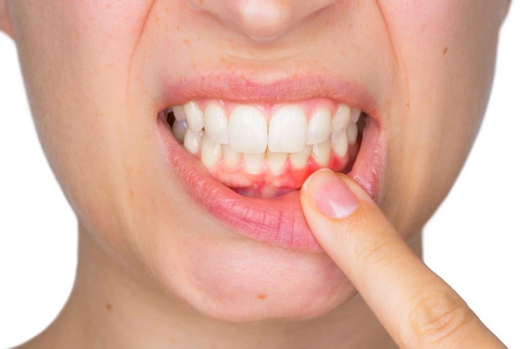 пузырьки на слизистой рта фото