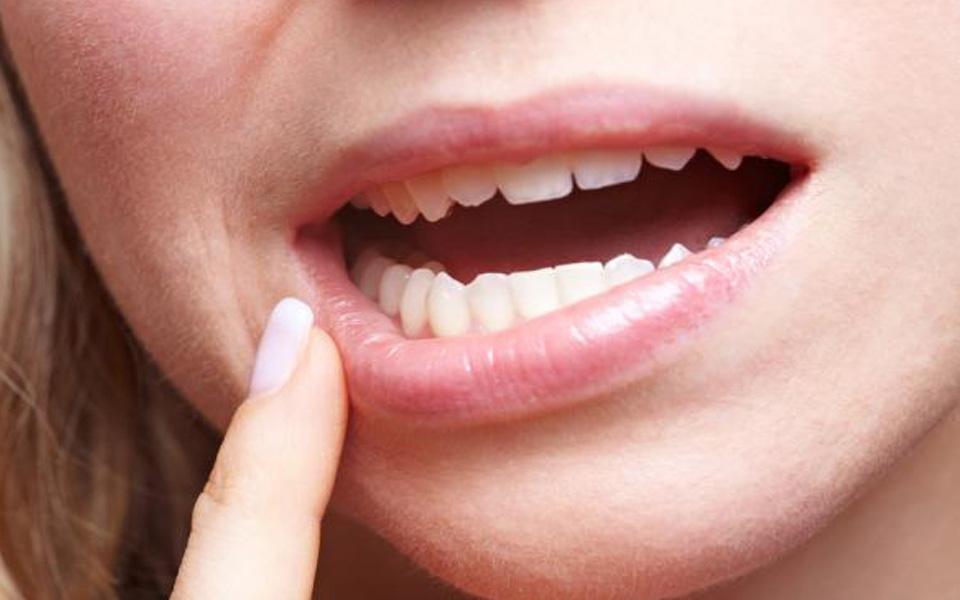 кровяные пузырьки на слизистой рта