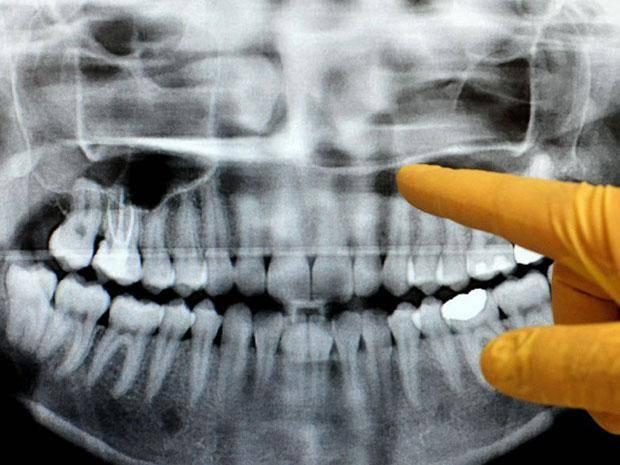 после удаления зуба на десне белое пятно