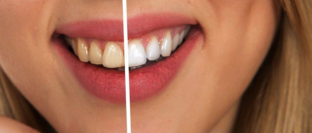 Darkening of tooth enamel