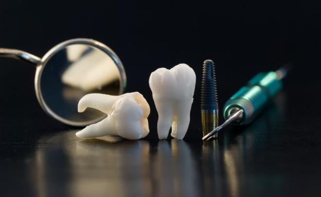анестезия при удалении зуба