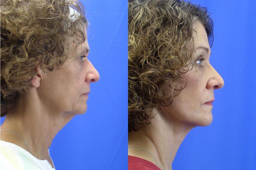 Векторный лифтинг лица: отзывы косметологов и клиентов, техника проведения процедуры, результат, фото до и после лифтинга