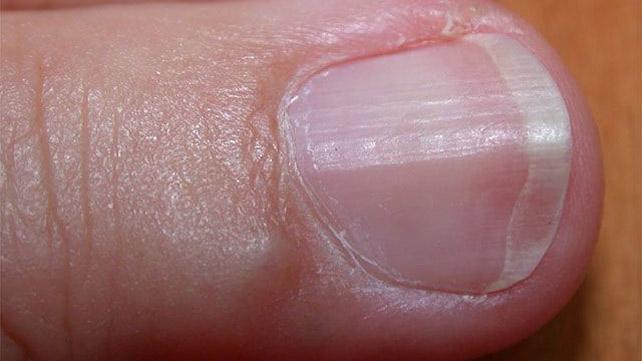 Почему ногти растут волнами: описание с фото, возможные причины и методы решения проблемы