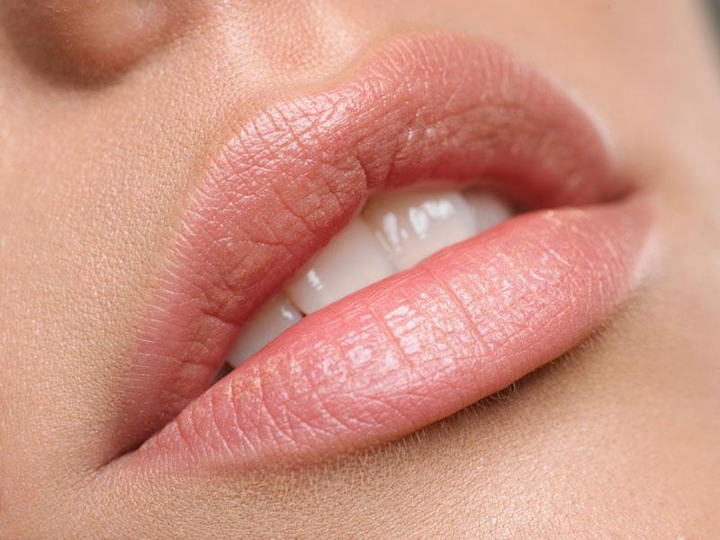 Увеличение губ «Ювидермом»: результат, сколько держится, отзывы