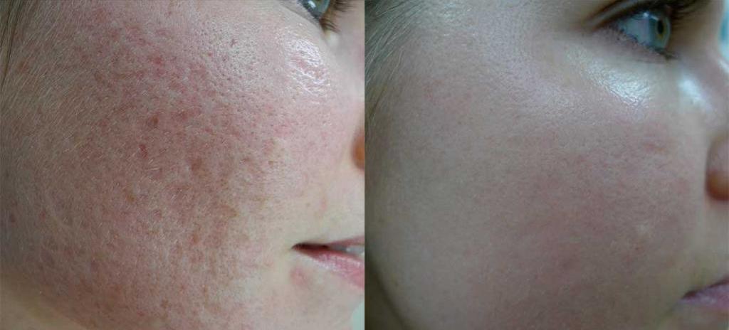 Лазерная шлифовка шрамов: фото до и после. Шлифовка шрамов лазером на коже: описание процедуры и отзывы пациентов