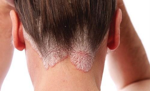 Дегтярное мыло при псориазе: способы применения, рекомендации, отзывы