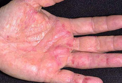 Хороший крем от аллергии на коже 18