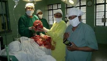 мезенхимальные опухоли патологическая анатомия