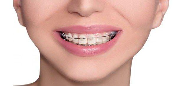 Скученность зубов: лечение и причины