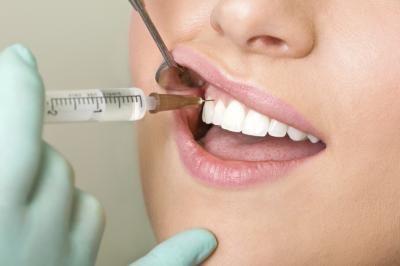 Как удаляют сверхкомплектный зуб у ребенка