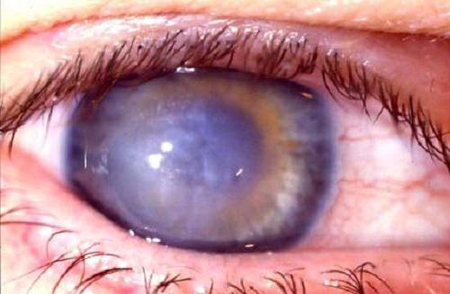 Зрение при кератоконусе