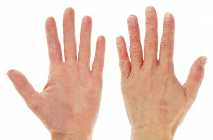 крем для рук от трещин и сухости