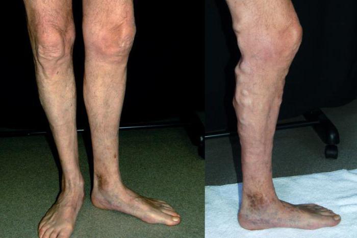 какой врач лечит варикоз вен на ногах