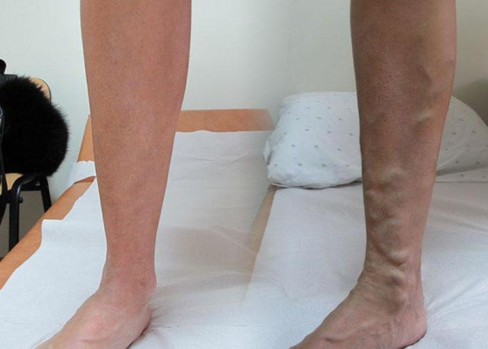 Как лечить непроходимость сосудов ног 42