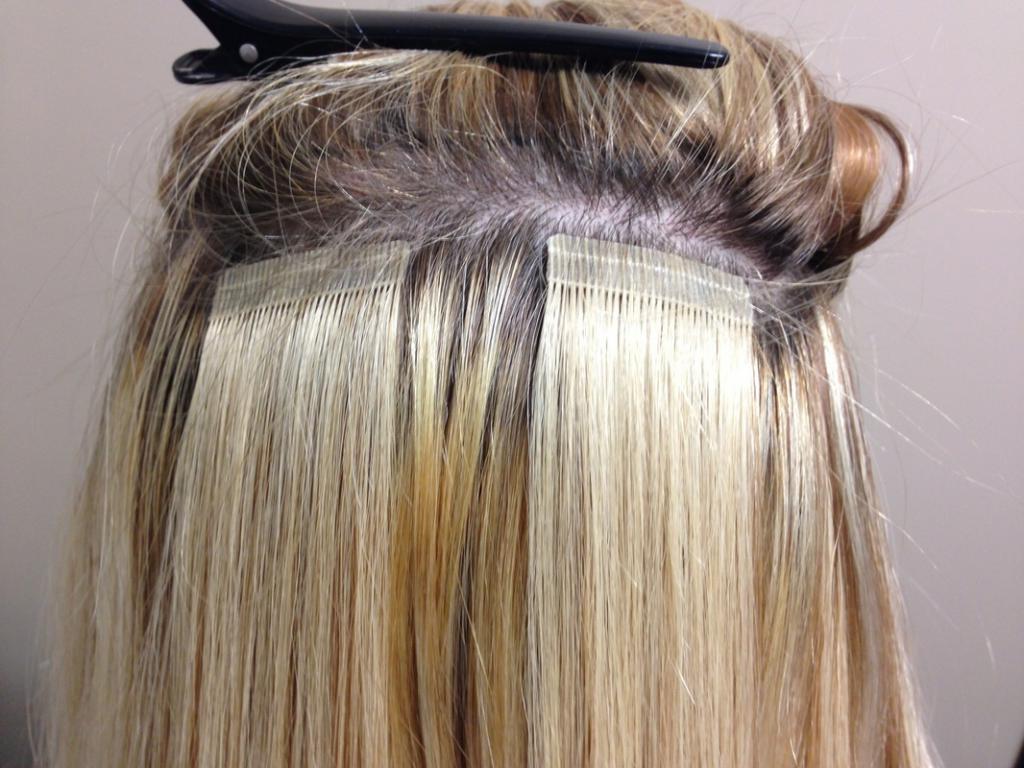 Фото шатенок с длинными волосами меняют прикус