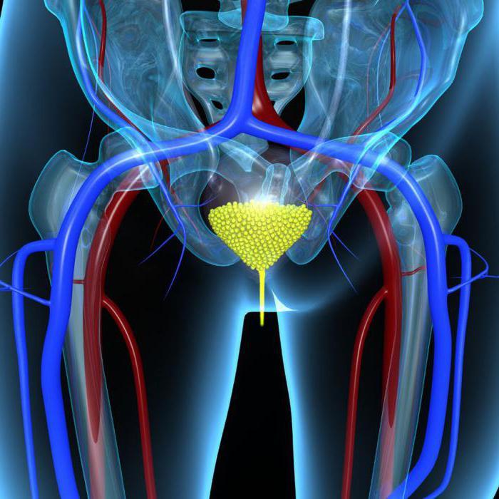 рак мочевого пузыря у мужчин выживаемость основные методы