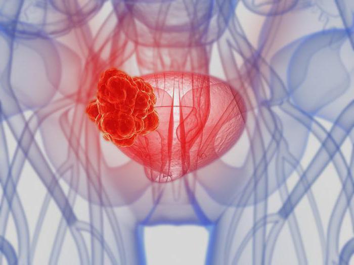 рак мочевого пузыря у мужчин выживаемость прогноз