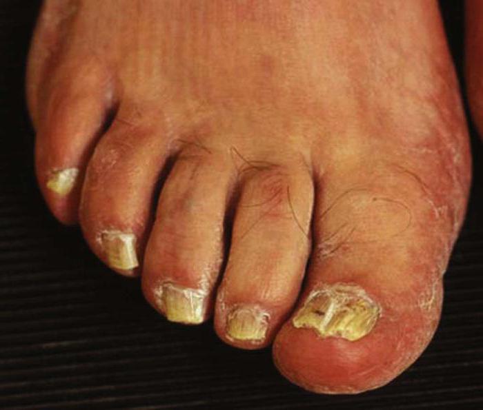 Гигиена при грибке кожи ног