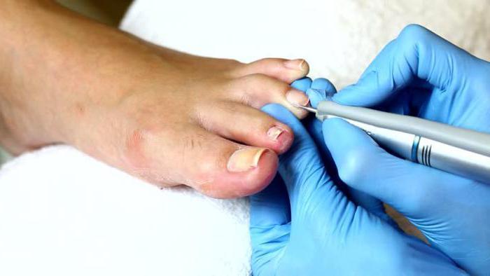 Сколько стоит лечение вросшего ногтя