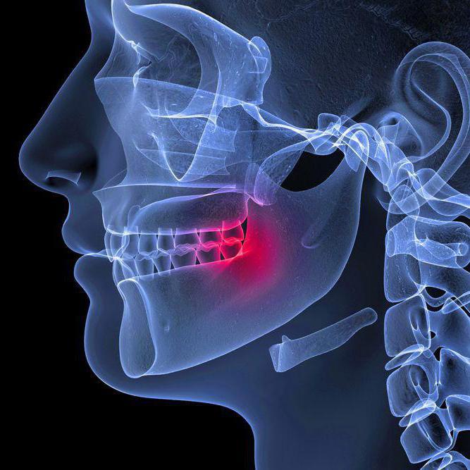 Воспалился челюстной сустав ua болезнь суставов симтомы
