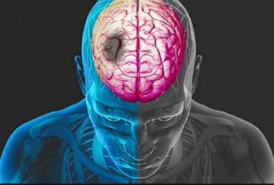 Ишемический инсульт: прогноз для жизни, последствия, симптомы