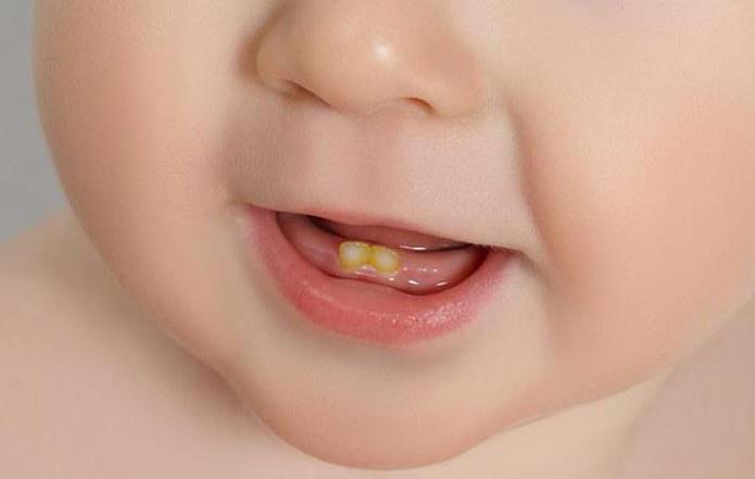 Как отбелила зубы мерлин монро
