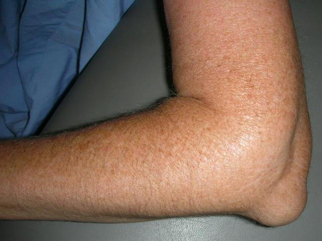 опухоль локтевого сустава фото
