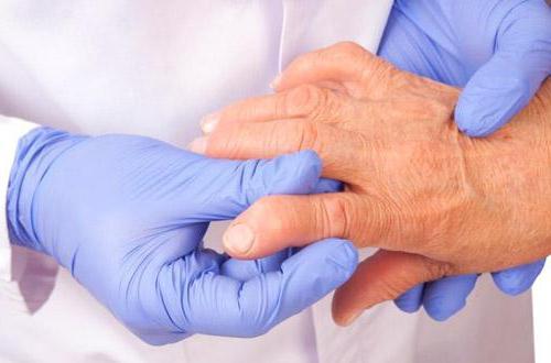средство для суставов при артрозе