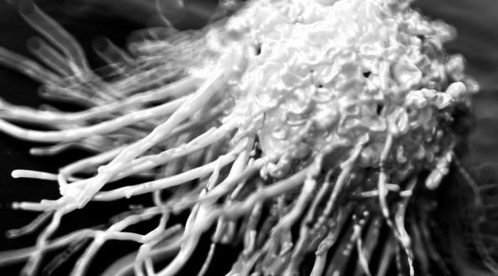 признаки рака простаты