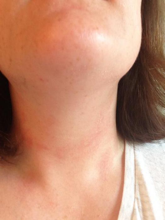 Увеличенные лимфоузлы по всему телу и сыпь