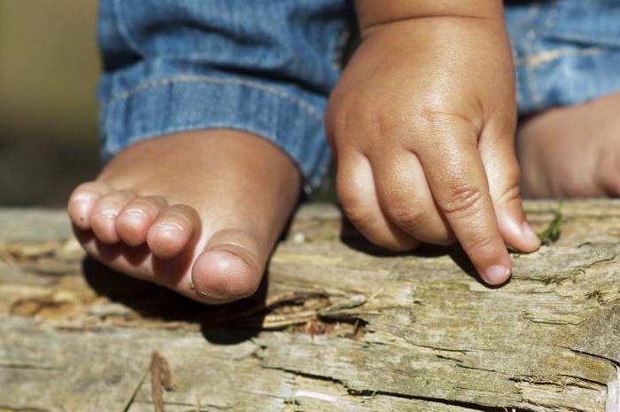 сыпь на ладошках и ступнях у ребенка