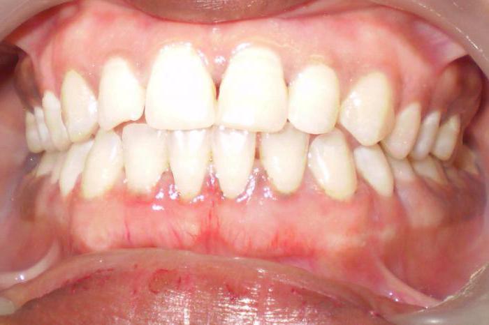 стоматология чем лечить десна опустились