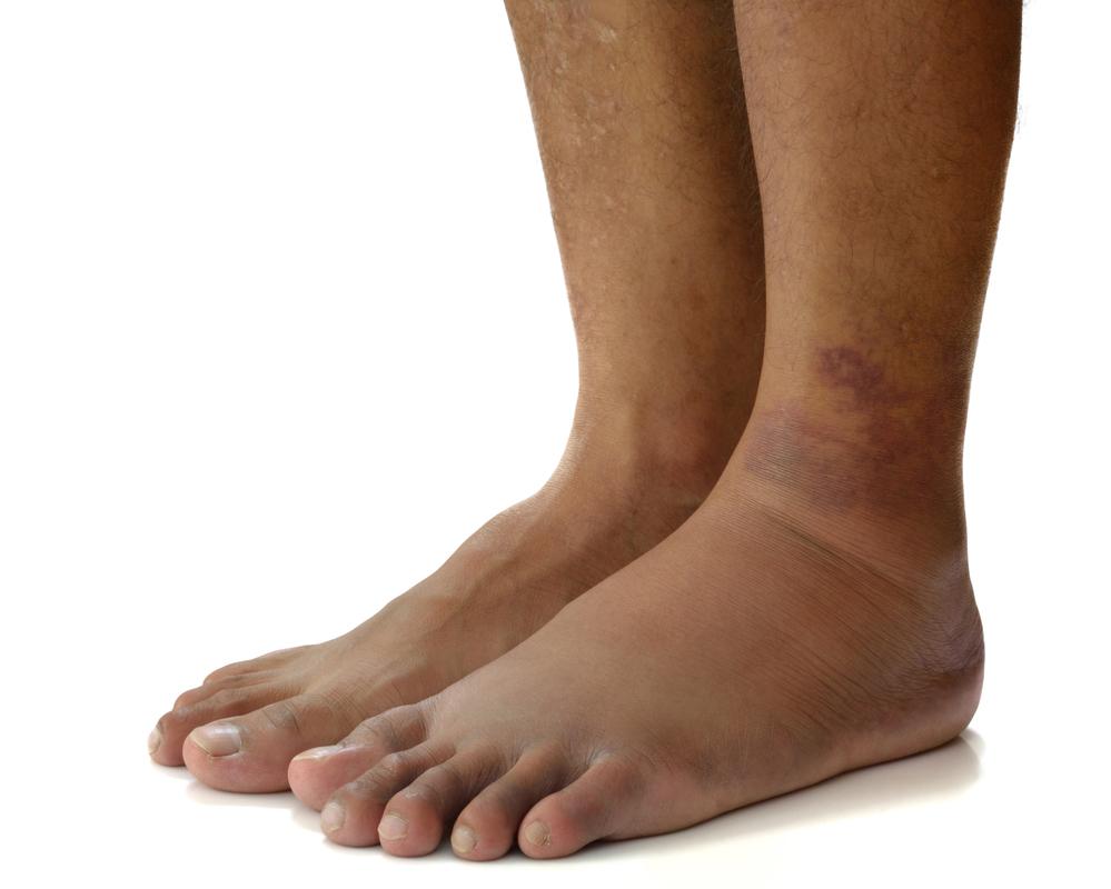 Отеки ног при гипотонии