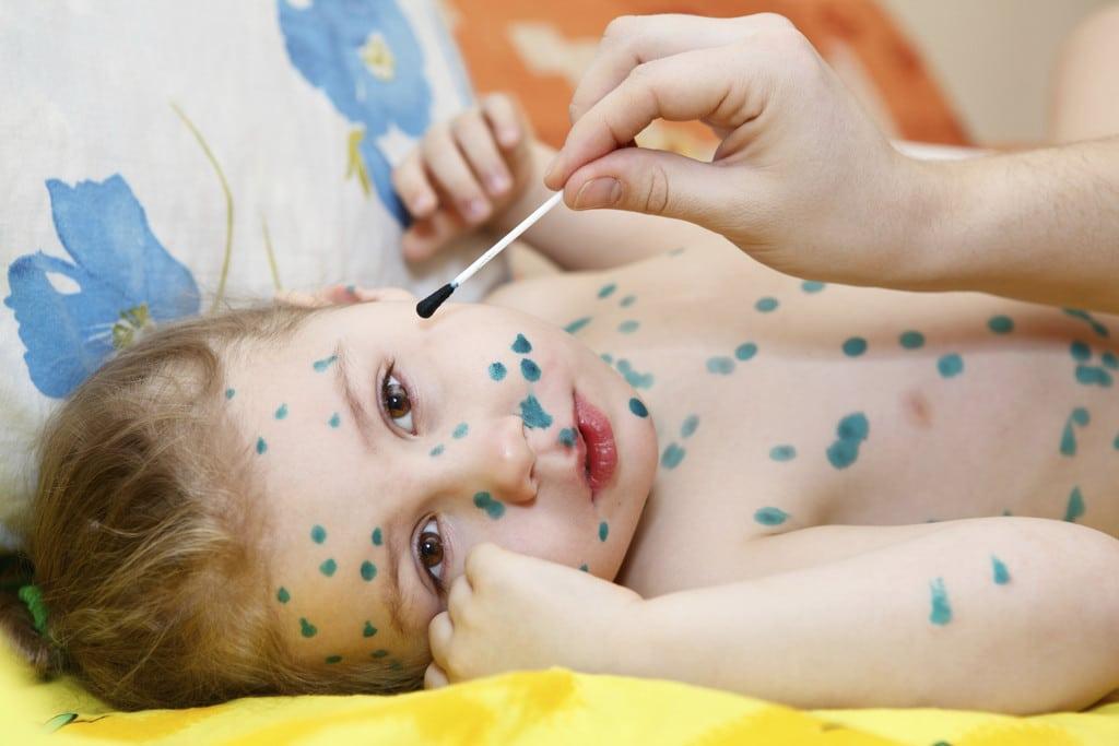 Ветряная оспа у детей: причины, симптомы, диагностика и особенности лечения