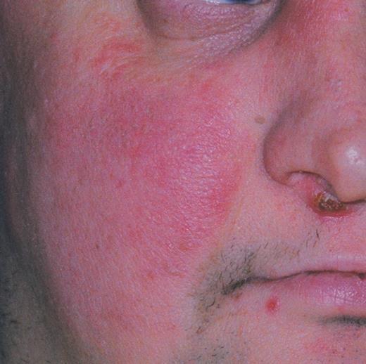 Рожистое воспаление на лице фото 28