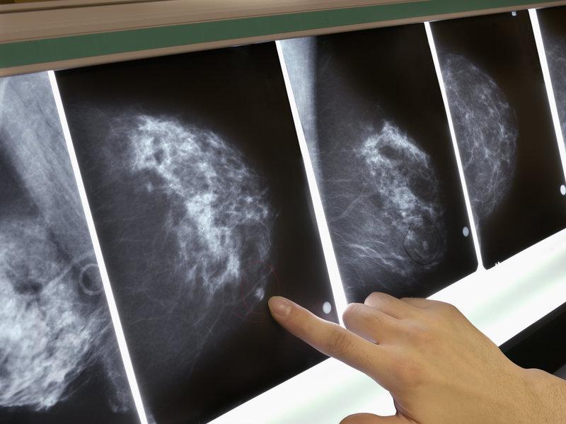 облучение при раке молочной железы