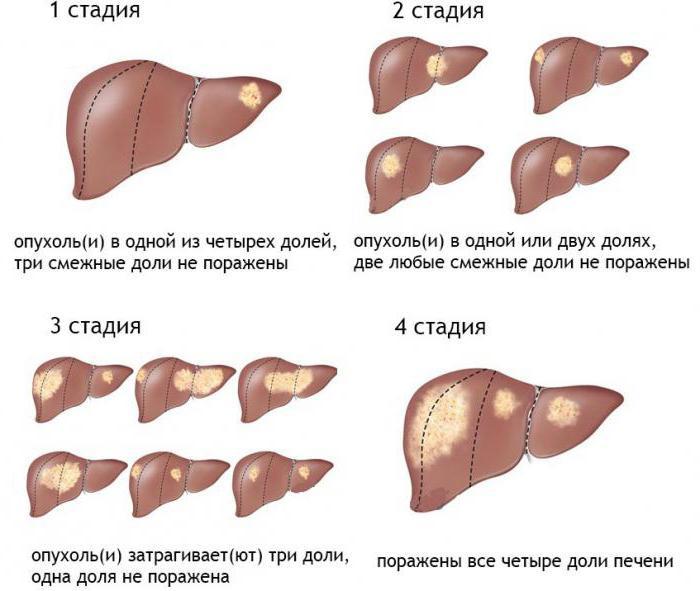 последняя стадия рака печени