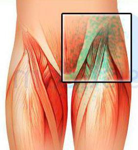 воспаление лимфоузлов на ноге