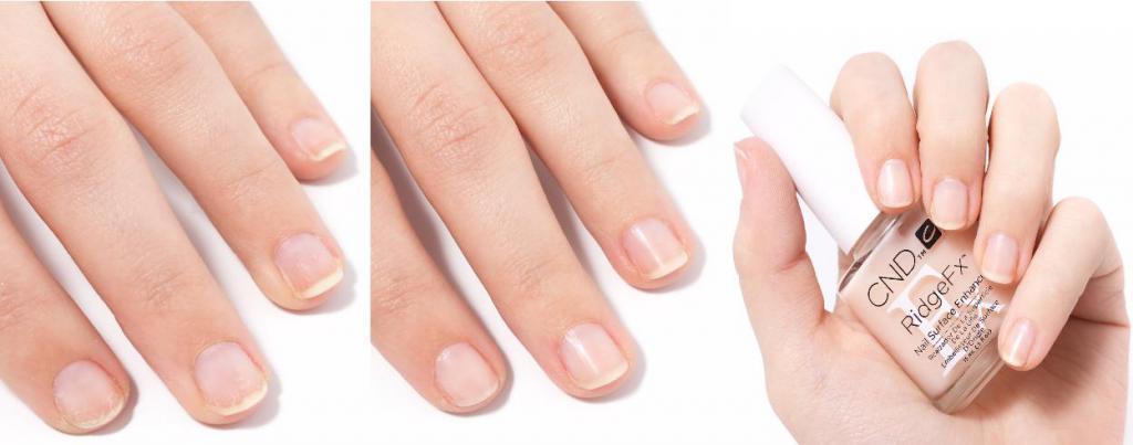 Почему слоятся ногти на руках лечение в домашних условиях 501